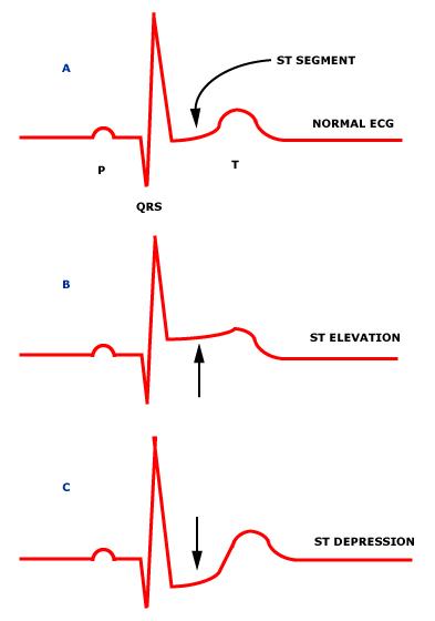 St Segment Elevation Myocardial Infarction ECG
