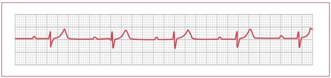 Dr. Smith's ECG Blog: A large R-wave in lead V1. And why is the PR ...